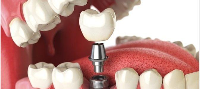Sunt implanturile dentare potrivite pentru tine?